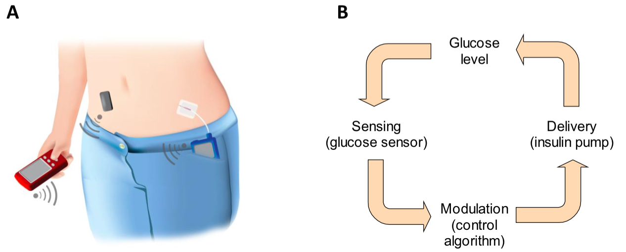 impact of closed loop insulin delivery system Hybrid closed-loop system continuous insulin delivery system that provides all the developments and their potential effects on.
